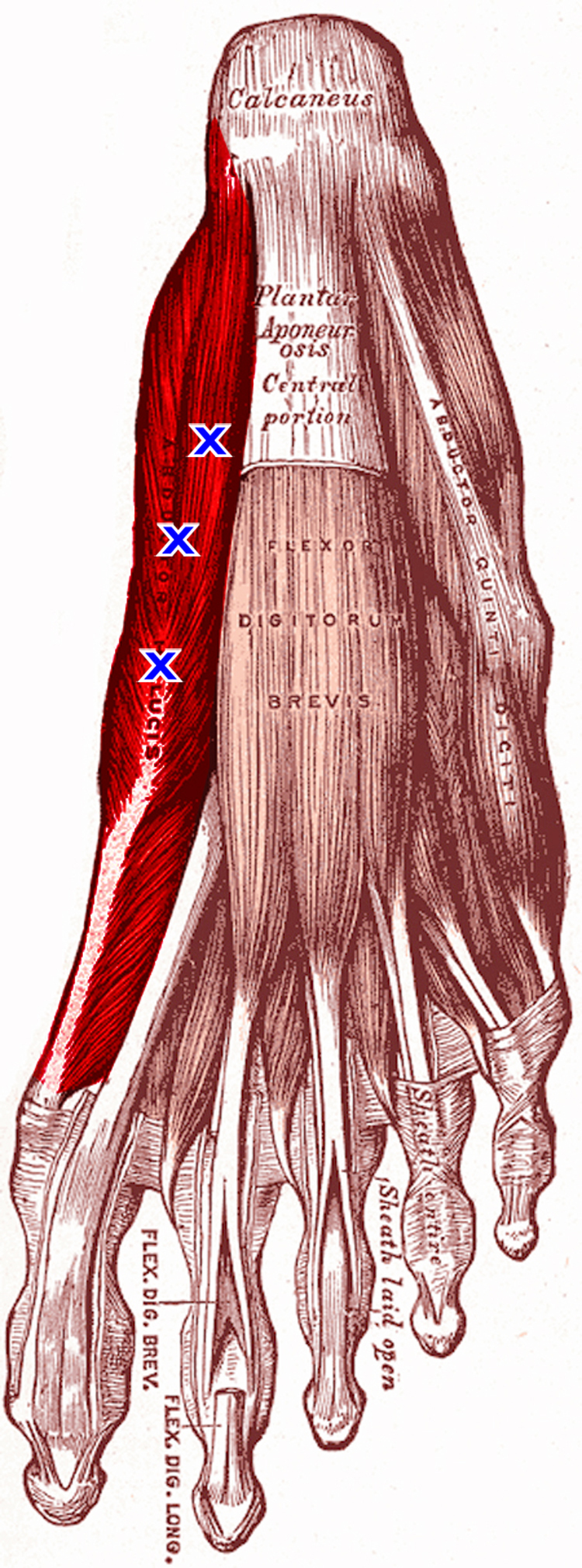 abductor hallucis muscle with TrP.jpg